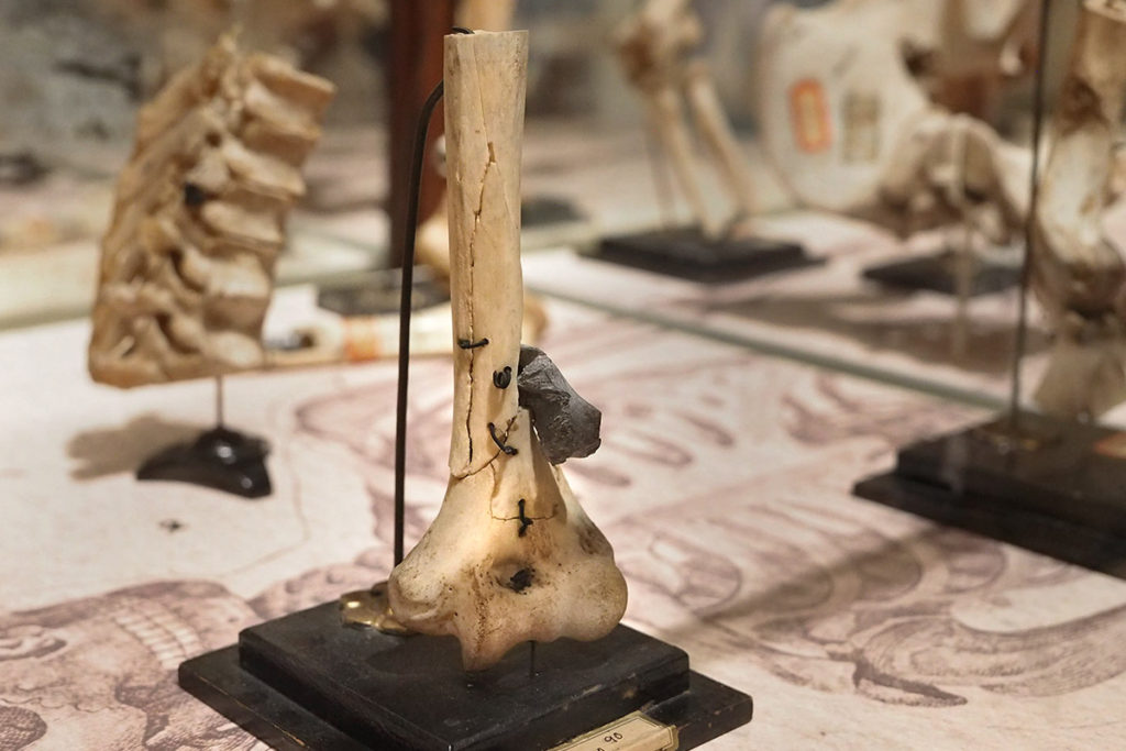 Union Army medical specimen of a shattered Union soldier bone.