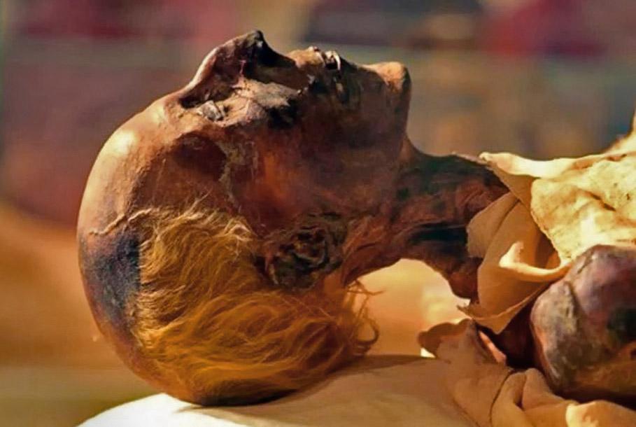 The mummified head of Ramses II whose sphinx is in the Penn Museum.